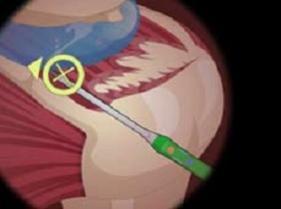 juego de hacer cirugias de hombro